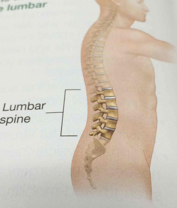 Can acupuncture help lumbar radiculopathy?