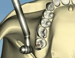 My dental sealants have been placed too high, will they adjust and lower or should I call my dentist to fix them, I don't want to bug her.