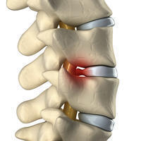How to treat a central disc herniation which impinges upon the thecal sac?