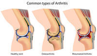 What is done for osteoarthritis of knees, ?