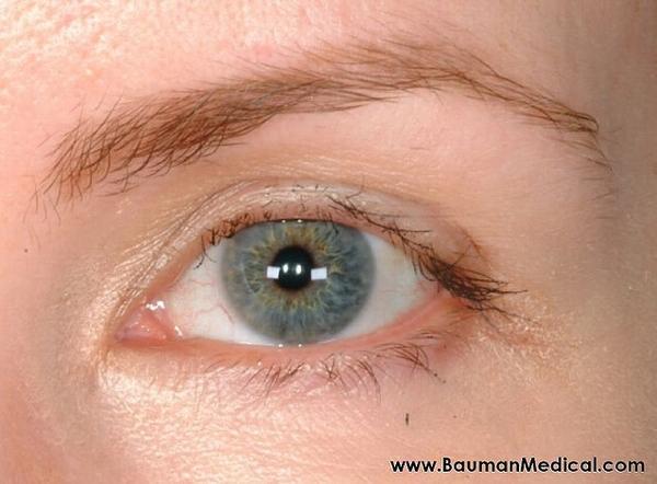 Are false eyelashes safe?