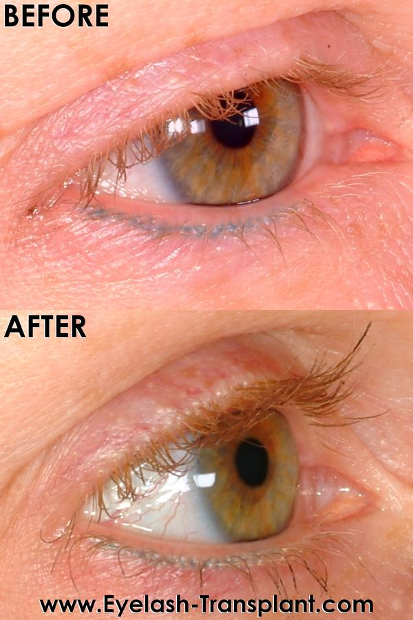 Cut Eyelashes Grow Longer Answers On Healthtap