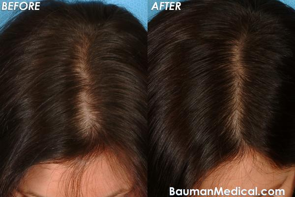 How to fix androgenic alopecia in women?
