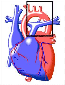 How expensive is the patent ductus arteriosus repair?
