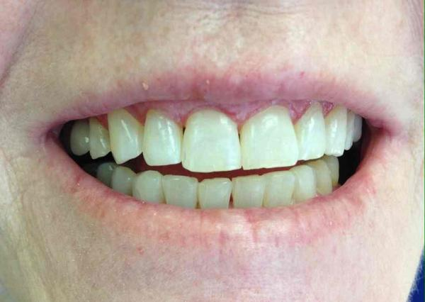 When you have gingivitis, are you supposed to brush your gums very hard or take it easy?