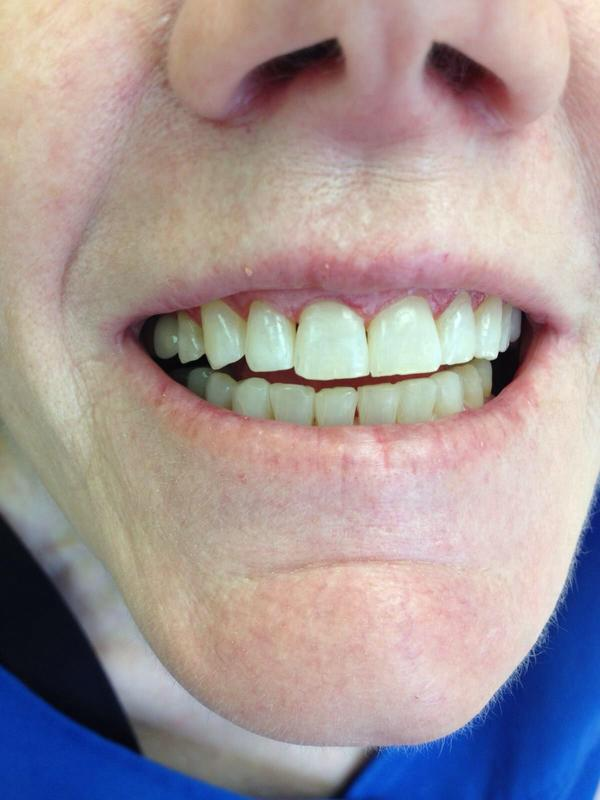 Teeth flaring out after braces. Orthodontist said he did it for my own good and did not take out teeth. (Without asking) Not happy. What do I do?