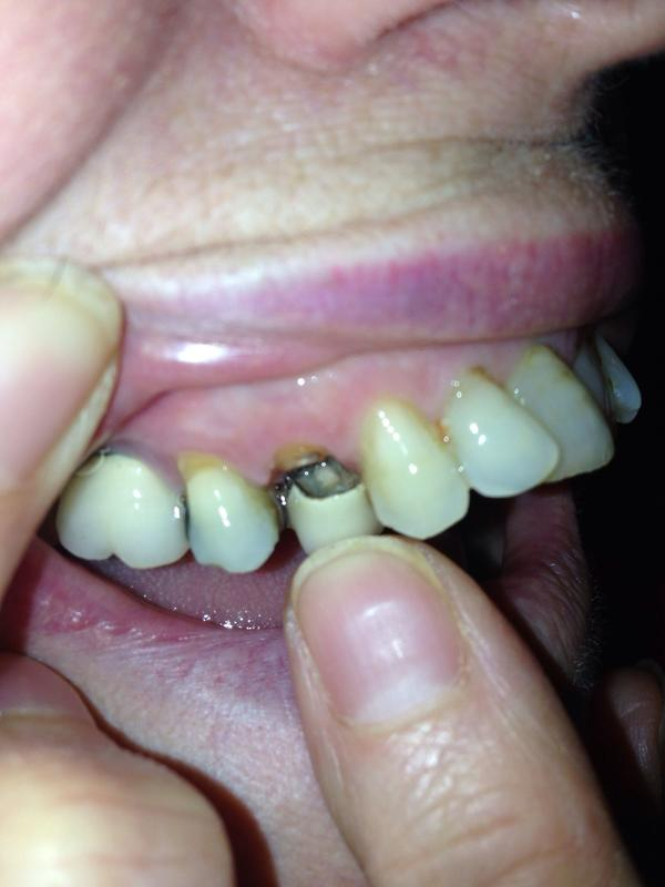 What is a dental fistula?