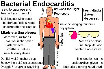 Infective endocarditis pathophysiology - Things You Didn't ...