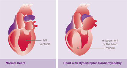 What to do if i heard about hypertrophic cardiomyopathy and now i'm scared?
