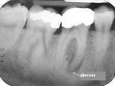 Would i know if i had an abscessed tooth?
