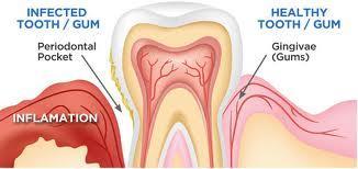 What does gum disease look like?