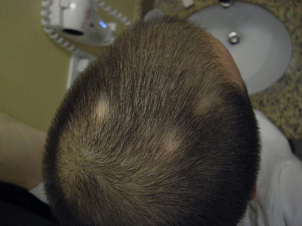 What to do if I have two small, round bald spots on the lower half of my scalp, what to do?