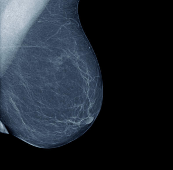 At what age can you get a mammogram?