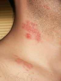 Sciatica or shingles, how can I tell?