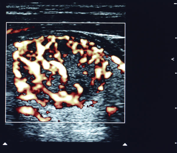 Iam so worried that, I want to get 2nd ultrasound in 7days to checkon my one hypoechoic 5x6 mm nodule. Is 2nd ultrasound in such a short time dangerous?