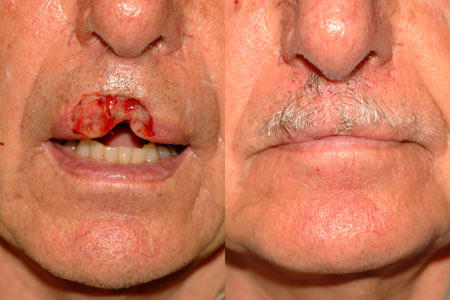 What is it like to have squamous cell carcinoma on upper lip?