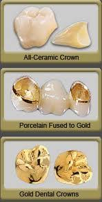 Which could very well be the longer lasting dental cap for back teeth--cerec, porcelin fused to high noble metal or a gold crown?
