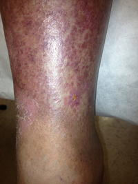 What to do if I have lymphedema in both legs.any advice?
