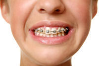 Could ceramic braces cause stain?