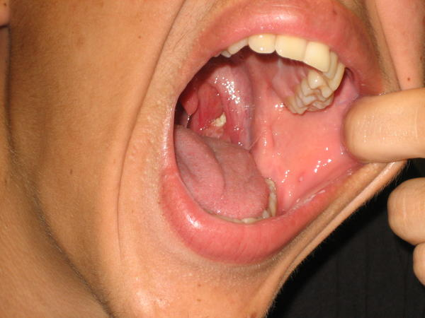 Think I got oral thrush gums&where tonsils were is red raised ulcer like. Tongue whitish yellow+red dots. Lots pain can't chew. Had 3 dif antibiotics?