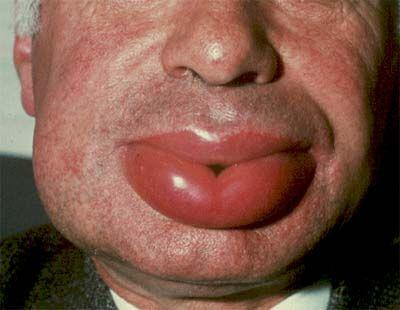 What can I do to try to prevent idiopathic angioedema attacks? Mine occur every 1-2 months
