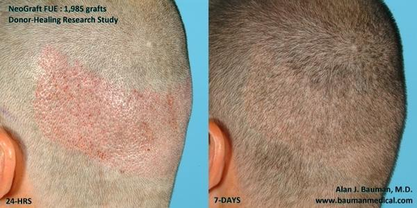 How effective is a  hair transplant?