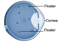 Are eye floaters serious problems, and do they go away on there own.