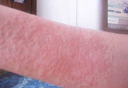 Does an allergic skin reaction have to be itchy?