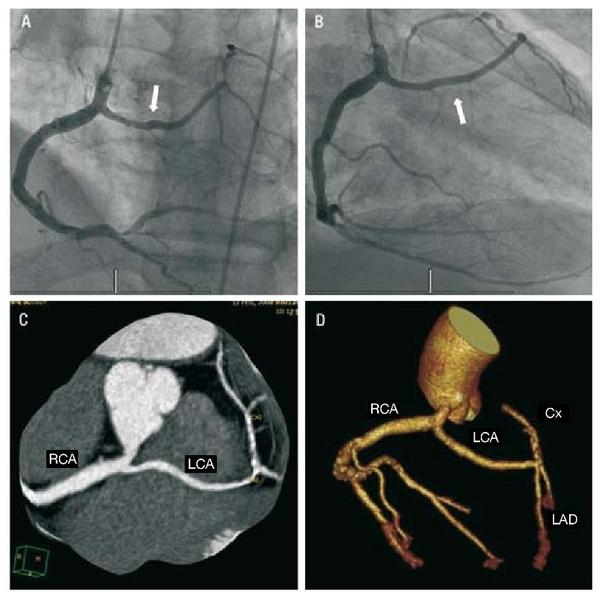 "Hi doctors, was just wondering what is ""single coronary artery""?"