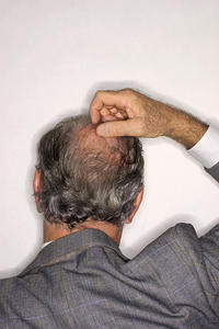 Is it true that Coumadin is rat poisoning and cause hair loss ...