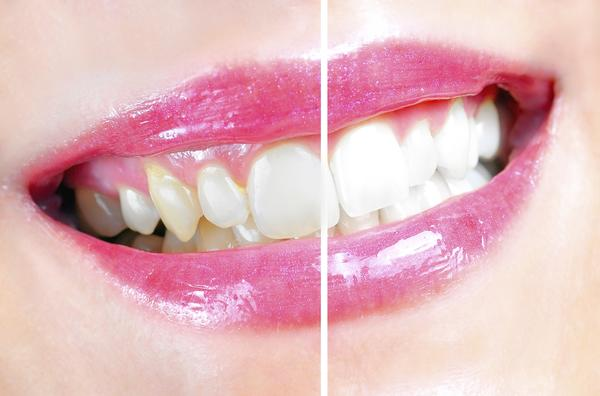 Is there any false teeth you can slip over your teeth?