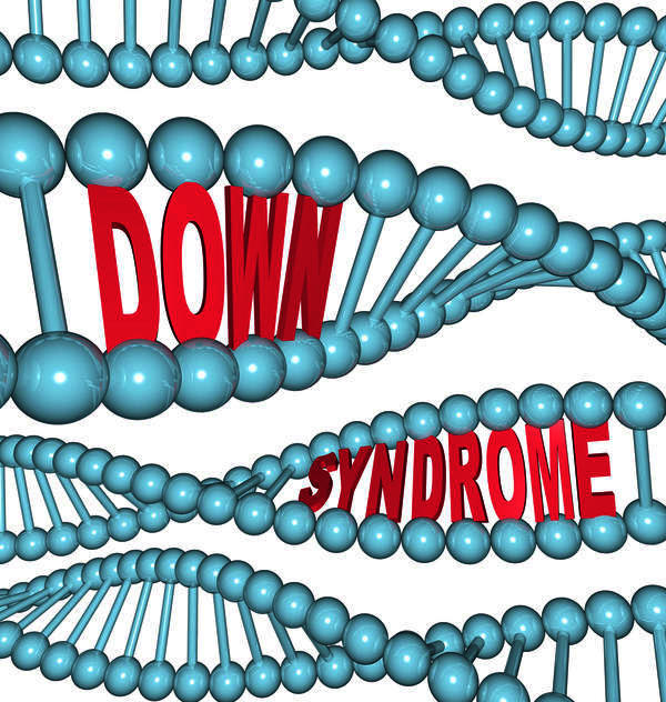 Is Down syndrome an autosomal dominant gene? Please advise!