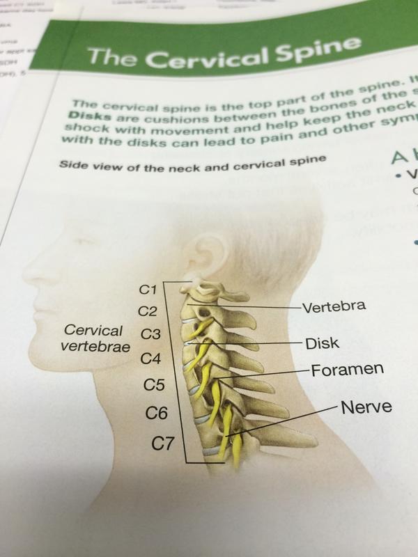 Spine c3 c4 - Answers on HealthTap