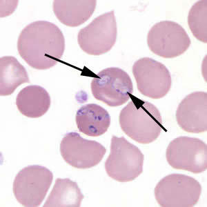 Can babesia deformed your blood cell? If I have babesia I have strong herx on artemisinin?So strong that i can't take it? Thanks!