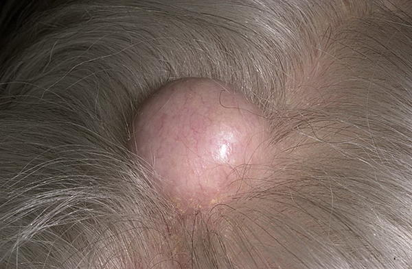 Do I have to be concern about a lump that I have under my scalp? Because, it's hurts. But is very hard, like a bone.