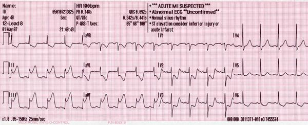 I have severe chest pains, but my ekgs were normal. Does this mean that something is wrong with my lungs?