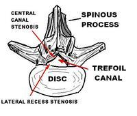What are symptoms of spinal stenosis?
