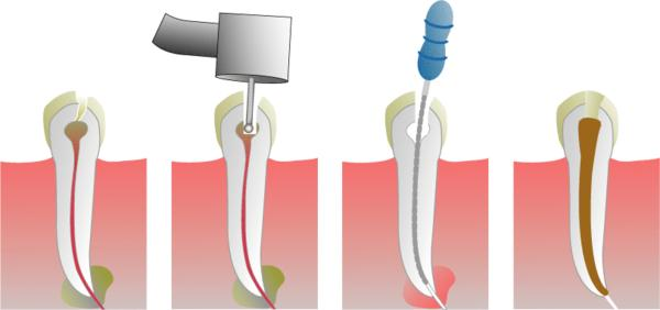 Can root regrow after having root canal therapy?