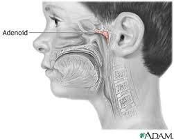 Will my r enlarged andeiod make my right neck feel bigger when I touch around my tonsil wall. I don't want surgery what can I do. Will it cont. Grow?