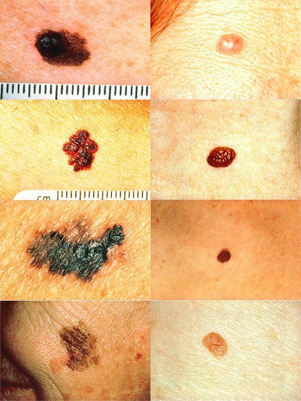 I did a search for diagnosis of some of my symptoms and came up with melanoma. What do doctors look for to diagnose it?
