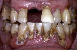 Could severe gum disease be cured in one visit for deep cleaning?