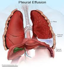 What are some options for the treatment of pleural effusion of both lower lobes causing pain and impeding full breaths after multiple pleurodeses?