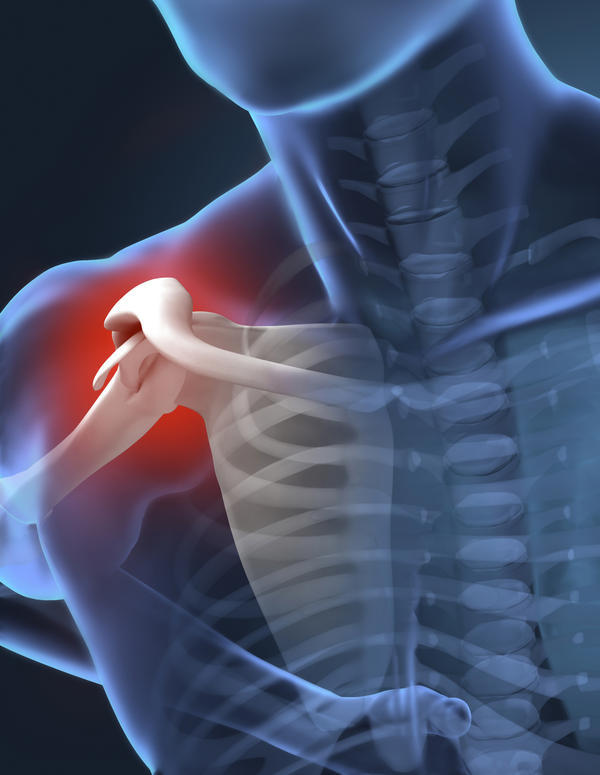 Pain Under The Arm From Elliptical Use Doctor Answers On