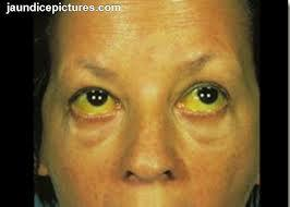 Does doxycycline cause jaundice? I don't take it now but my eyes are a bit yellow with indirect billirubin a bit elevated should I avoid this