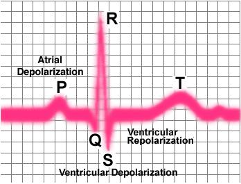Can you advise for understanding ekg's?
