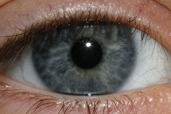 How should I clean the yellow discharge (about a drop) in the eye (caruncle) and a more translucent goo that appears on my eyeball nightly?