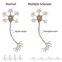 I was wondering what are the first signs that you have multiple sclerosis (ms)?