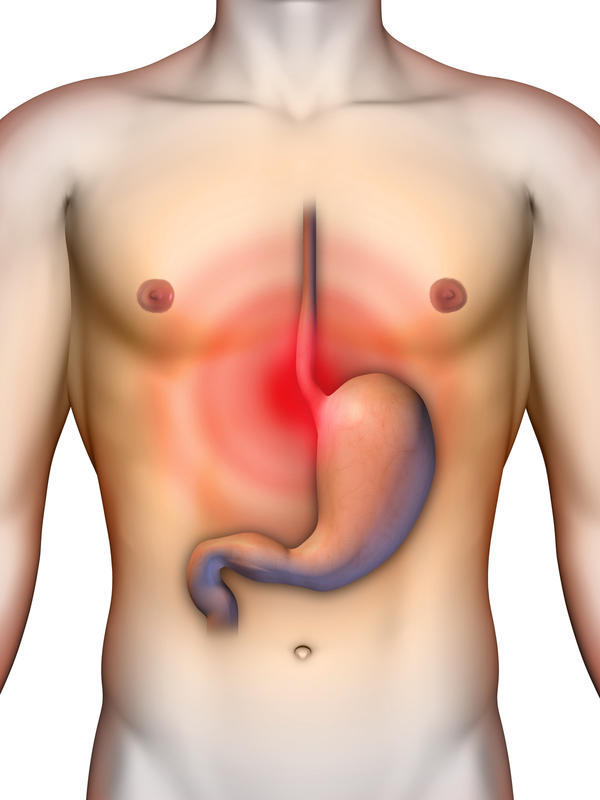 Is it normal to have acid reflux caused by not eating all day?