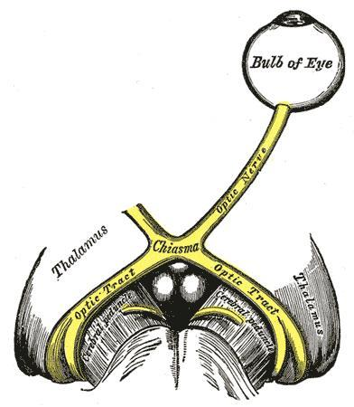 Severe optic neuritis --what do you do after diagnosis?