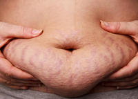 What is something cheap i can buy to get rid of stretch marks?